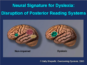 Understanding Dyslexia The Yale Center For Dyslexia Creativity >> The 4d Edge Neil Mackay And The New Teaching Paradigm